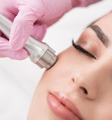Microdermabrasion, chemiefreies, physikalisches Peeling